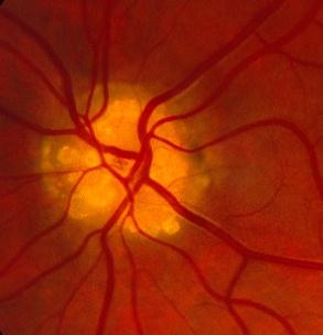 angioid streaks retinitis pigmentosaOptic Disc Drusen B Scan